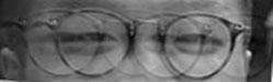 Teddy's eye